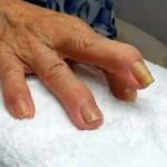中指が巻き爪になっています