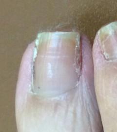 爪の両端にテーピングの粘着とコットンの繊維が溜まり、爪と指を引っ付けてしまって固まっていた。