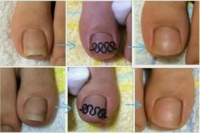 一番左が初診時。ツメフラを付け 約1ヶ月半で爪幅が本来の幅に戻り 矯正終了。