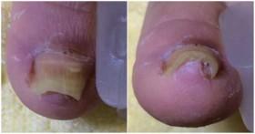 皮膚科で手術を宣告された巻き爪